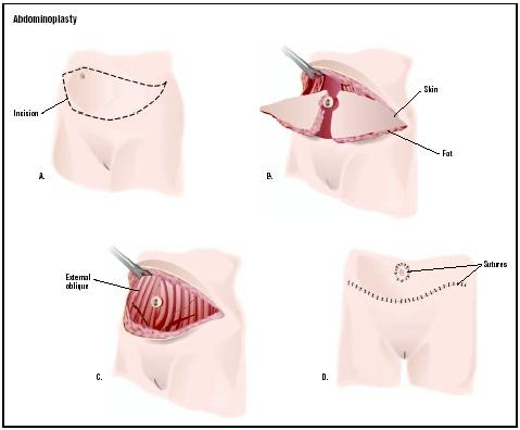 In an abdominoplasty, or tummy tuck, an incision is made in the ...
