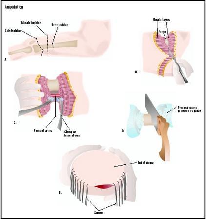 Amputation - procedure, test, blood, removal, pain