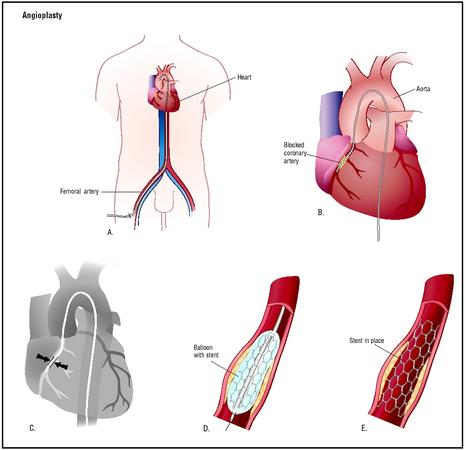 The balloon is inflated, opening the artery (D). The stent holds the artery