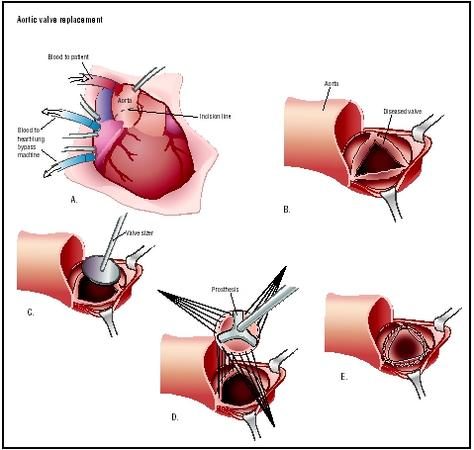 The heart is accessed through a chest incision (A). The patient's heart function is replaced by the heart-lung machine. The aorta is cut open to reveal a diseased aortic valve (B), which is then removed. A valve sizer is placed in the opening to determine the size of prosthesis needed (C). A prosthetic valve is sutured in place (D and E). (Illustration by Argosy.)