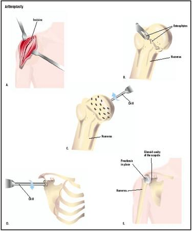 In this shoulder arthroplasty procedure, an incision is made into the shoulder (A). The head of the humerus (upper arm bone) is removed from the shoulder joint, and bone growths, or osteophytes, are removed (B). Small holes are drilled into the head to accept the prosthesis (C). Similar holes are drilled in the glenoid cavity (shoulder joint) (D). The final prosthesis improves shoulder function (E). (Illustration by GGS Inc.)