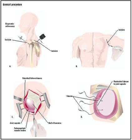 A Bankart procedure may be performed laparoscopically (A), or through an open incision in the shoulder (B). In the open procedure, the surgeon exposes the joint capsule and labrum, a rim of soft tissue that surrounds the cavity, which has become detached (C). Sutures reattach the labrum to the joint capsule (D). (Illustration by GGS Inc.)