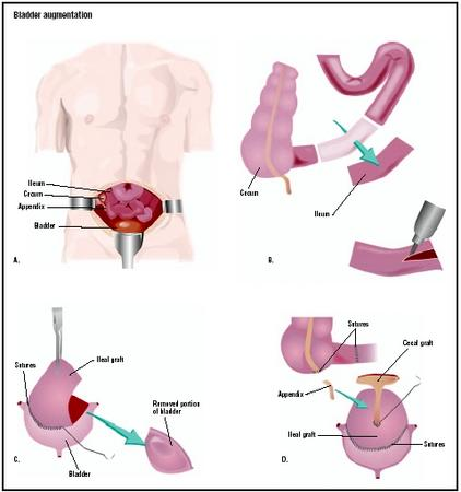 During a bladder augmentation procedure, an incision is made in the abdomen to expose the intestines and bladder (A). A section of ileum (small intestine) is removed and opened (B). After being sterilized, it is grafted onto the bladder to increase its capacity (C). The appendix and cecum (large intestine) may also be used (D). (Illustration by GGS Inc.)