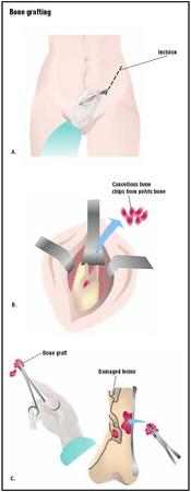 For bone grafting, an incision is made in the donor's hip (A). Pieces of bone are chipped off and removed (B). The bone materials are then transferred to the recipient area, in this case a femur that has been badly broken, to strengthen the bone (C). (Illustration by GGS Inc.)