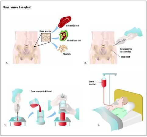 Bone marrow consists of red blood cells, white blood cells, and platelets (A). In a bone marrow transplant, bone marrow is harvested from the donor's pelvic bone at the iliac crest (B). The marrow is filtered (C) before being introduced into a large vein in the recipient's chest via a catheter (D). (Illustration by GGS Inc.)
