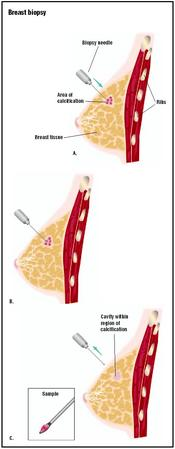 During a needle biopsy on the breast, a local anesthetic is used, and a needle with a looped end is inserted into the potential tumor (A). A sample is taken (B), and the needle withdrawn (C). The sample is sent to a laboratory for analysis. (Illustration by GGS Inc.)