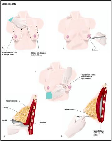 process breast implant