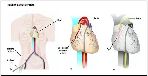 During cardiac catherization, a catheter is fed into the femoral artery of the upper leg (A). The catheter is fed up to coronary arteries to an area of blockage (B). A dye is released, allowing visualization of the blockage (C). (Illustration by GGS Inc.)