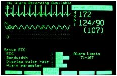 Cardiac Monitor - blood, time, operation, heart, rate, Definition