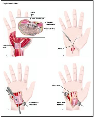 To perform a carpal tunnel release, the surgeon makes an incision in the palm of the hand, above the area of the carpal tunnel (B). The carpal ligament going across the hand is severed (C), releasing pressure on the median nerve (D). (Illustration by GGS Inc.)