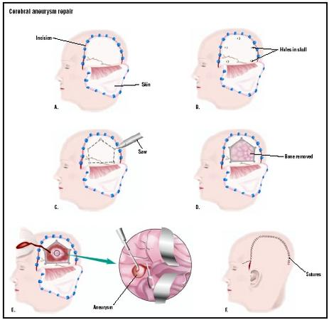 To repair a cerebral aneurysm by craniotomy, an incision is made in the skin on the side of the head (A). Small holes are drilled in the skull (B), and a special saw is used to cut the bone between the holes (C). The bone is removed (D), and the aneurysm is treated (E). The bone is replaced, and the skin is sutured closed (F). (Illustration by GGS Inc.)
