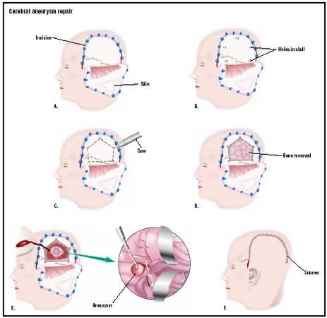Cerebral Aneurysm Repair - procedure, recovery, test ...