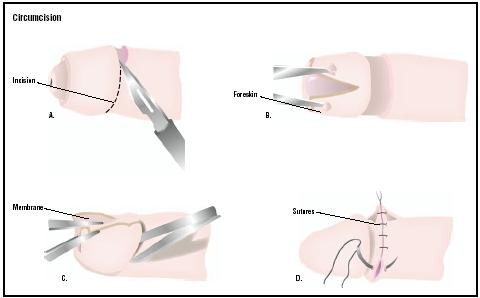 During a circumcision, the outer layer of the foreskin around the penis is cut (A). The foreskin is pulled away (B), and the remaining membrane is cut away (C). Sutures are used to stitch the area (D). (Illustration by GGS Inc.)