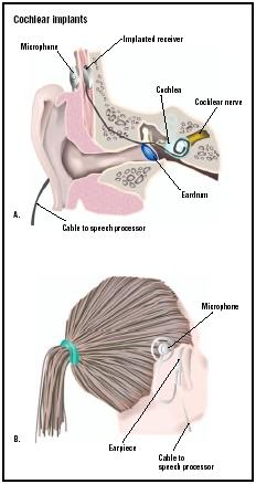 A cochlear implant has a microphone outside the ear that transmits sounds to an implanted receiver. In turn, the receiver transmits electrical impulses to the cochlea and cochlear nerve, which is stimulated in normal hearing. (Illustration by GGS Inc.)
