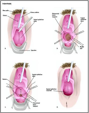 In this anterior colporrhaphy, a speculum is used to hold open the vagina, and the cystocele is visualized (A). The wall of the vagina is cut open to reveal an opening in the supporting structures, or fascia (B). The defect is closed (C), and the vaginal skin is repaired (D). (Illustration by GGS Inc.)
