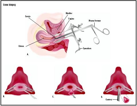 The cervix is visualized, and a cone-shaped piece