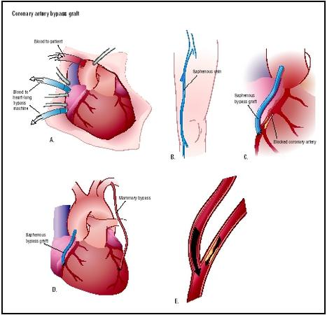 During a coronary artery bypass graft (CABG), the chest is opened to visualize the heart (A). A heart-lung machine takes over the function of the heart during the procedure. A portion of the saphenous vein of the leg is removed (B). This vessel is used to bypass a blockage of the coronary artery. It is attached from the aorta past the point of blockage (C). Another option is to bypass a blockage with the mammary artery (D). The bypass increases blood flow to the area served by the coronary artery (E). (Illustration by Argosy.)