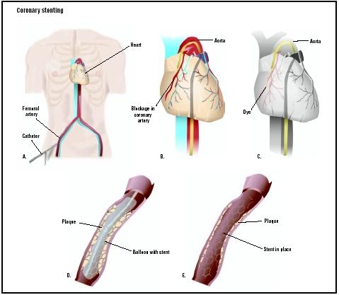 During coronary stenting, a catheter is fed into the femoral artery of the upper leg (A). The catheter is fed up to coronary arteries to an area of blockage (B). A dye is released, allowing visualization of the blockage (C). A stent is placed on the balloon-tipped catheter. The balloon is inflated, opening the artery (D). The stent holds the artery open after the catheter is removed (E). (Illustration by GGS Inc.)