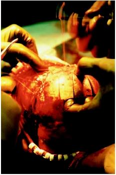 A child undergoing surgery on the skull. (Photograph by Alexander Tsiaras. Science Source/Photo Researchers. Reproduced by permission.)