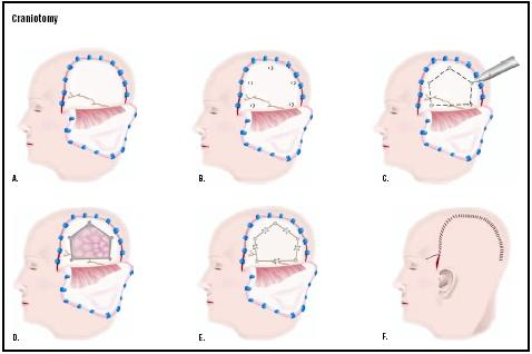 In a craniotomy, the skin over a part of the skull is cut and pulled back (A). Small holes are drilled into the skull (B), and a special saw is used to cut the bone between the holes (C). The bone is removed, and a tumor or other defect is visualized and repaired (D). The bone is replaced (E), and the skin closed (F). (Illustration by GGS Inc.)