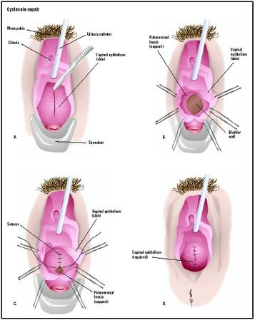 vagina, and the cystocele is visualized (A). The wall of the vagina ...