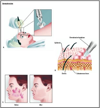 A doctor performs dermabrasion with a high-speed rotary wheel (A). The tool takes off the top layers of the skin (B) to improve the appearance of wrinkles or scars (C). (Illustration by GGS Inc.)