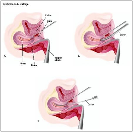 For a D & C, the patient lies on her back, and a weighted retractor is placed in the vagina (A). A dilator is used to open the cervix (B), and a curette is used to scrape the inside of the uterus (C). (Illustration by GGS Inc.)