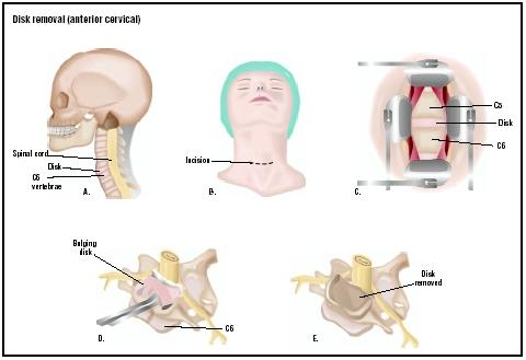 In the anterior cervical disk removal, an incision is made into the patient's neck (B). The cervical disk, which may be herniated, is visualized (C). It is removed completely (D and E). (Illustration by GGS Inc.)