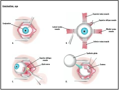 The conjunctiva (outer covering of eye) is removed with blunt scissors (A). The four rectus muscles are removed from their attachments to the eyeball (B). The optic nerve is severed (C), and the eyeball is removed. A synthetic globe replaces the eyeball in the socket, and the rectus muscles are sutured around it (D). (Illustration by GGS Inc.)