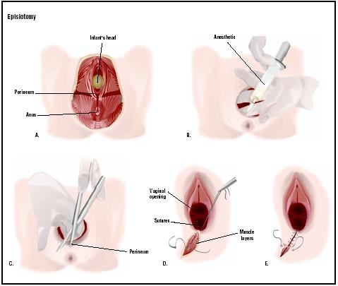Pictures Of Episiotomy