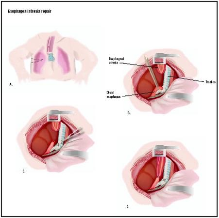 To repair esophageal atresia, an opening is cut into the chest (A). The two parts of the existing esophagus are identified (B). The lower esophagus is detached from the trachea (C) and connected to the upper part of the esophagus (D). The wound in the trachea is closed, and the chest incision is repaired. (Illustration by GGS Inc.)