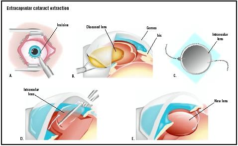 In extracapsular cataract extraction, an incision is made in the eye just beneath the iris, or colored part (A). The diseased lens is pulled out (B). A prosthetic intraocular lens is placed through the incision (D), and is opened to replace the old lens (E). (Illustration by GGS Inc.)