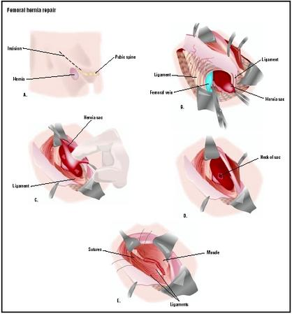 To repair a femoral hernia, an incision is made in the groin area near the hernia (A). Skin and ligaments are pulled aside to expose the hernia (B). The hernia sac is opened, and the contents are pushed back into the abdominal cavity (C). The neck of the sac is tied off, and excess tissue is removed (D). Layers of skin and tissues are repaired (E). (Illustration by GGS Inc.)