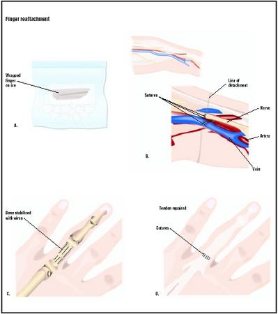 To save a detached finger for reattachment surgery, it should be wrapped in a moist paper towel and put on ice (A). First the surgeon will reattach the blood vessels and nerves of the finger (B). The bone may be repaired with wires (C), and tendons are repaired (D). Skin and muscle wounds are also closed during the procedure. (Illustration by GGS Inc.)