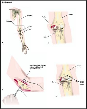 In this patient, a fall has resulted in fractures in the bones of the elbow (B). To repair the fracture, an incision is made in the elbow area (C), and the bones are fixed with screws to aid proper healing (D). (Illustration by GGS Inc.)