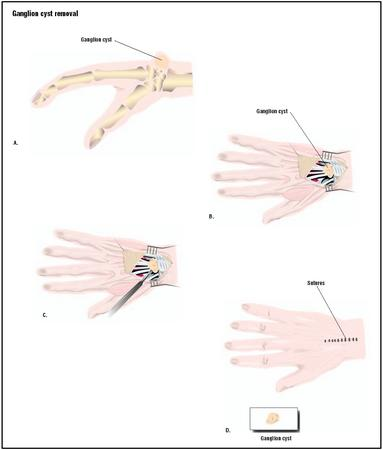 A ganglion cyst is usually attached to a tendon or muscle in the wrist or finger (A). To remove it, the skin is cut open (B), the growth is removed (C), and the skin is sutured closed (D). (Illustration by GGS Inc.)