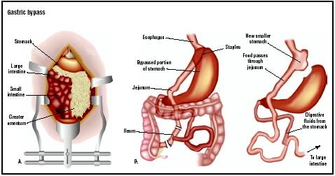 In this Roux-en-Y gastric bypass, a large incision is made down the middle of the abdomen (A).The stomach is separated into two sections. Most of the stomach will be bypassed, so food will no longer go to it. A section of jejunum (small intestine) is then brought up to empty food from the new smaller stomach (B). Finally, the surgeon connects the duodenum to the jejunum, allowing digestive secretions to mix with food further down the jejunum. (Illustration by GGS Inc.)