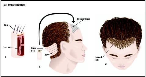 In a hair transplant, plugs of hair and supporting tissues are removed from a donor area at the back of the head (A and B). Pieces of skin are removed at the front of the head, and grafts are placed (C). (Illustration by GGS Inc.)