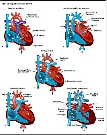 The most common types of congenital heart defects are ventricular septal defect (A), complete transposition of the great vessels (B), tetralogy of Fallot (C), coarctation of the aorta (D), and hypoplastic left heart syndrome (E). (Illustration by GGS Inc.)