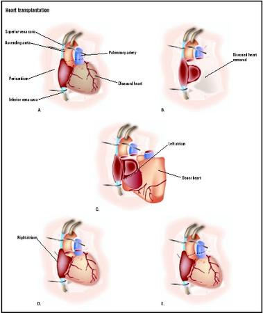 For a heart transplantation, the area around the heart is exposed through a chest incision (A). The blood vessels leading to the heart are clamped, and the heart function is replaced by a heart-lung machine. The diseased heart is removed (B). The donor heart is placed in the chest, and the left atrium is attached (C). The right atrium is connected (D), and the aorta and pulmonary artery are finally attached (E). (Illustration by GGS Inc.)