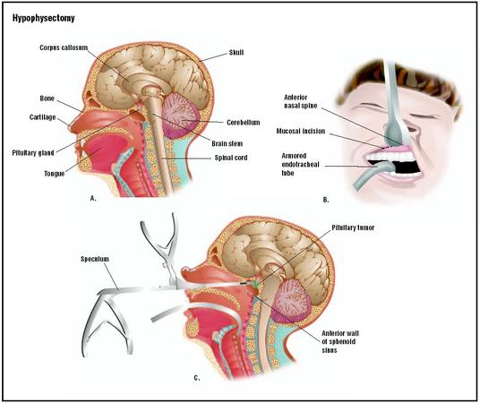 Hypophysectomy is a procedure to access and remove the pituitary gland (A). To access it, an incision is made beneath the patient's upper lip to enter the nasal cavity (B). A speculum is inserted, and special forceps are used to remove the pituitary tumor (C). (Illustration by GGS Inc.)