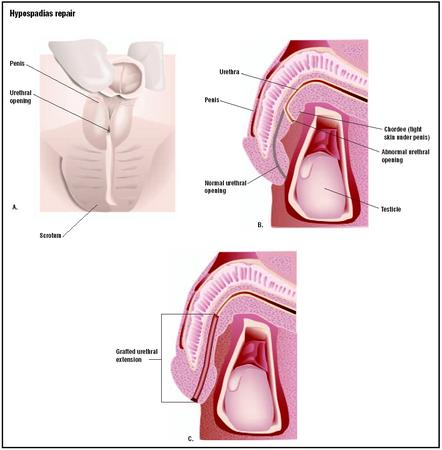 In hypospadias, the urethral opening is at the base of the penis, instead of the tip (A). Tissue grafts are used to create an extension for the urethra (C) and alleviate the tight skin, or chordee, on the underside of the penis. (Illustration by GGS Inc.)