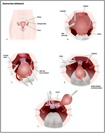 In a hysterectomy, the reproductive organs are accessed through a lower ...