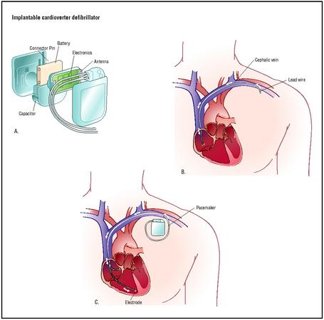 To place an implantable cardioverter defibrillator, a lead wire is inserted into the cephalic vein of the shoulder and fed into the heart chambers (B). An electrode is implanted in the heart muscle of the lower chamber, and the device is attached (C). (Illustration by Argosy.)