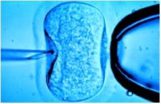 A microscopic image of a needle (left) injecting sperm cells directly into a human egg (center). The broad object at right is a pipette used to hold the ovum steady. (Phototake NYC. Reproduced by permission.)