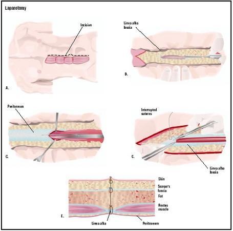 Laparotomy, Exploratory - procedure, recovery, blood, tube