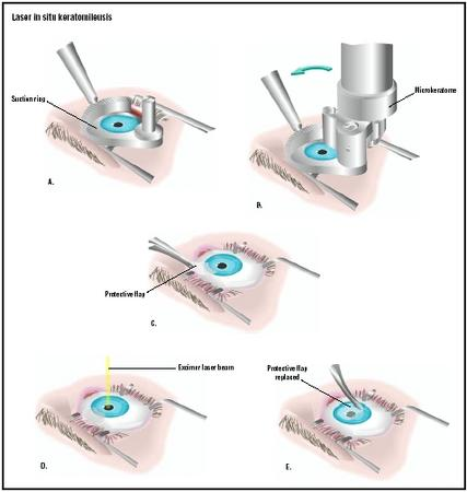 In LASIK surgery, the eye is held open with a speculum, and a suction ring is attached to the eyeball (A). A microkeratome is used to shave the protective flap off the top of the eye (B), which is then pulled back (C). A computer-controlled laser is used to reshape the cornea (D), and the protective flap is replaced (E). (Illustration by GGS Inc.)