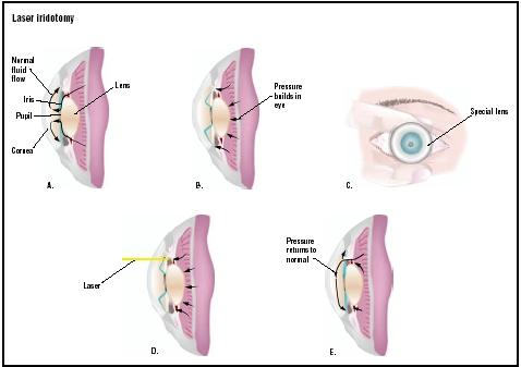 Normally intraocular fluid flows freely between the anterior and posterior sections of the eye (A). As pressure builds in the eye, this circulation is cut off (B). In laser iridotomy, a special lens is placed on the eye (C). A laser is used to create a hole in part of the iris (D), allowing fluid to flow more normally and intraocular pressure to return to normal (E). (Illustration by GGS Inc.)