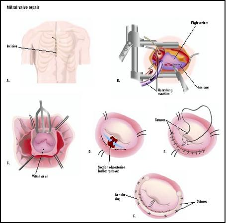 During a mitral valve repair, the patient's chest is opened along the sternum (A). The heart is connected to a heart-lung machine, and an incision is made into the right atrium, or upper chamber of the heart (B), exposing the mitral valve (C). A section of the valve is removed, and the area is repaired with sutures (D and E). A flexible fabric ring may be stitched to the outside of the valve to strengthen it, in a procedure called an annuloplasty (F). (Illustration by GGS Inc.)