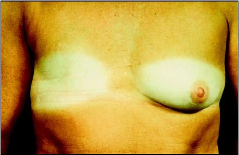 Woman with scars from a modified radical mastectomy. (Biophoto Associates/Science Source. Reproduced by permission.)